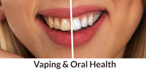 Vaping Teeth Stain, Does Vaping Stain Your Walls, Vaping And Teeth Sensitivity, Vaping Gums Hurt, Oral Hygiene For Vapers